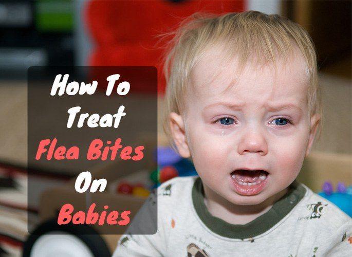 How to treat flea bites on babies